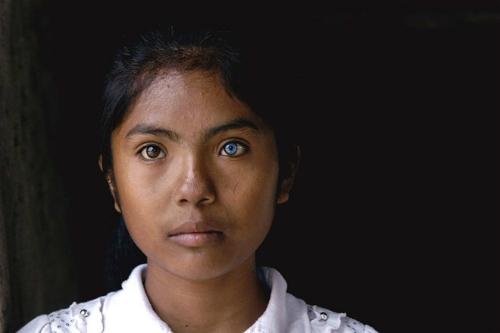Cô gái có đôi mắt hai màu kỳ lạ ở Ninh Thuận - 4