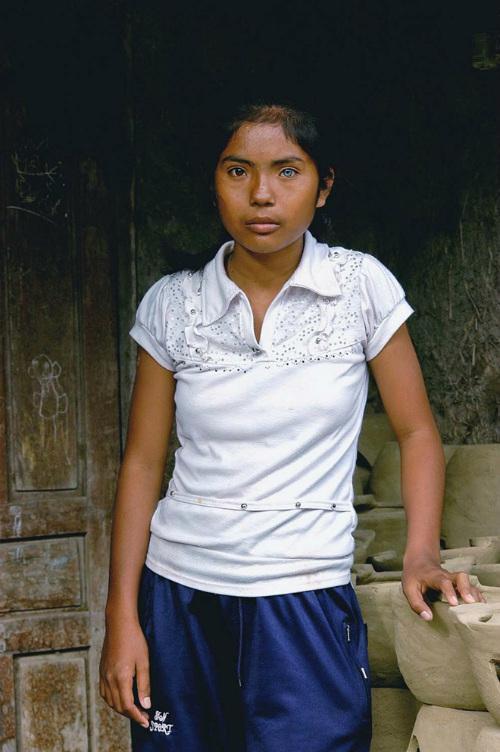 Cô gái có đôi mắt hai màu kỳ lạ ở Ninh Thuận - 6