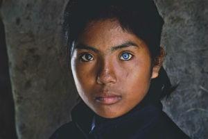 Cô gái có đôi mắt hai màu kỳ lạ ở Ninh Thuận