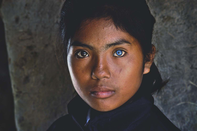 Đôi mắt hai màu đen và xanh của em Thạch Thị Sa Pa, 14 tuổi , người dân tộc Chăm ở xã Phú Quý, Ninh Phước, Ninh Thuận.