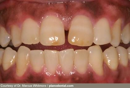 Nhìn răng miệng, chẩn bệnh - 1