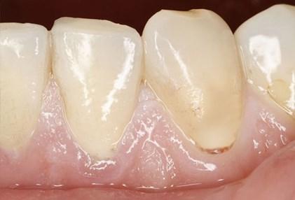 Nhìn răng miệng, chẩn bệnh - 3