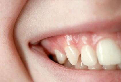 Nhìn răng miệng, chẩn bệnh - 6