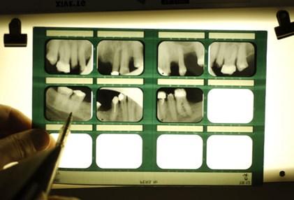 Nhìn răng miệng, chẩn bệnh - 5