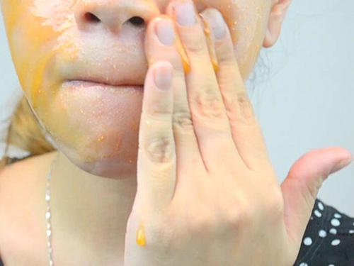 Tự điều chế mặt nạ trị mụn từ aspirin - 4