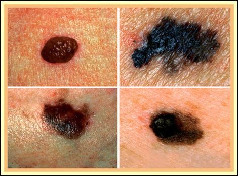15 dấu hiệu ung thư đàn ông dễ bỏ qua - 4