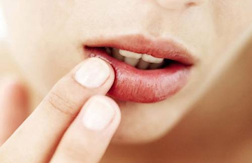 Loại bỏ 4 thói quen xấu làm môi nứt nẻ - 1