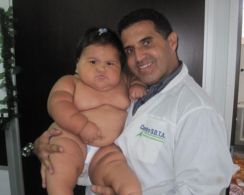 Bé gái 10 tháng tuổi cân nặng như trẻ 5 tuổi - 3