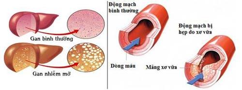 Sống chung với mỡ máu cao, gan nhiễm mỡ & bệnh tim mạch - 1