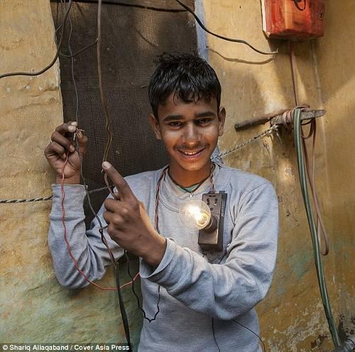 Cậu bé Ấn Độ chịu được dòng điện 11 nghìn Vôn - 3
