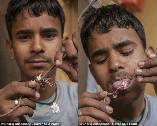 Cậu bé Ấn Độ chịu được dòng điện 11 nghìn Vôn - 1