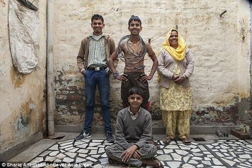 Cậu bé Ấn Độ chịu được dòng điện 11 nghìn Vôn - 5