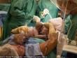 Mẹ tự tay đưa 2 con sinh đôi ra đời