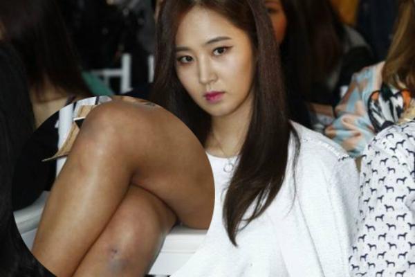 Yuri (SNSD) lộ chân thâm tím tham dự sự kiện