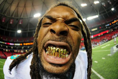 Những hình ảnh ấn tượng nhất 2014: Sao bóng bầu dục khoe răng vàng (P2) - 13