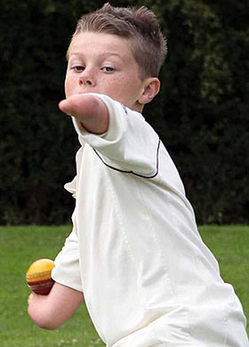 Cậu bé không tay chơi bóng chày cực đỉnh - 2