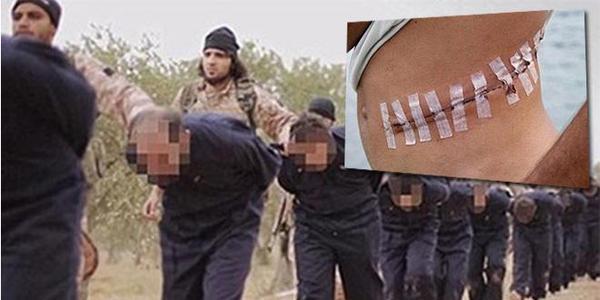 """Iraq tố IS """"thu hoạch"""" nội tạng người - 2"""