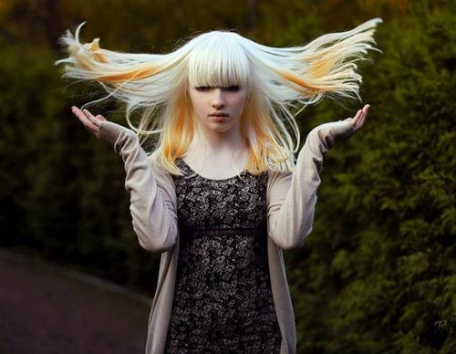 Cô gái bạch tạng trở thành người mẫu nổi tiếng thế giới - 1