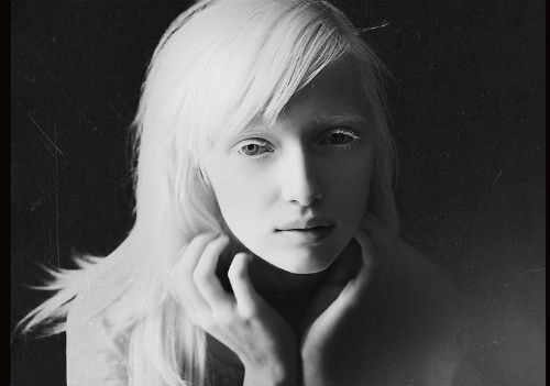 Cô gái bạch tạng trở thành người mẫu nổi tiếng thế giới - 3