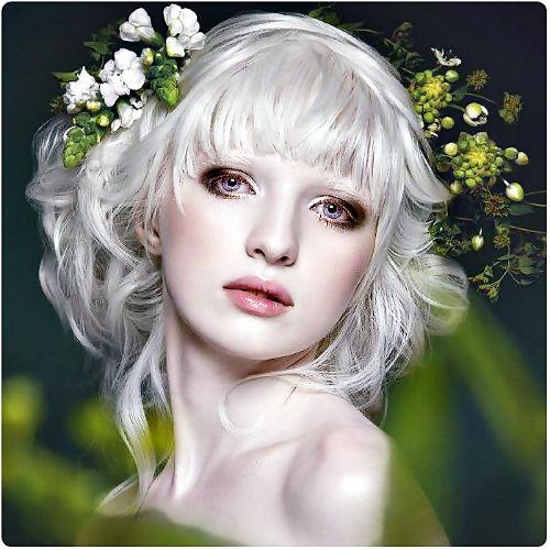 Cô gái bạch tạng trở thành người mẫu nổi tiếng thế giới - 2