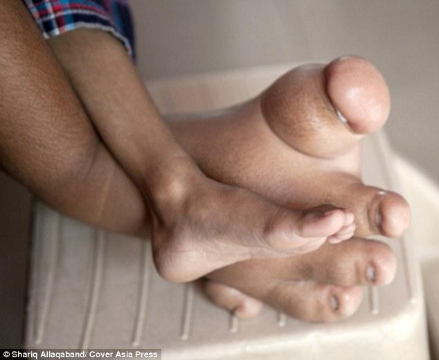Cuộc sống bị cô lập của cậu bé có bàn chân khổng lồ - 4