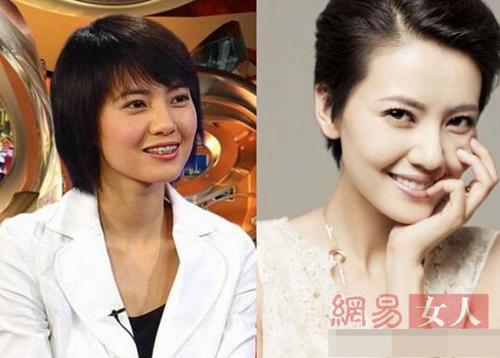 Bóc mẽ hàm răng xấu xí của người đẹp Hoa ngữ - 4