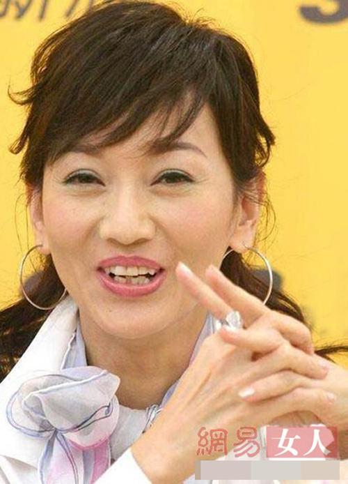 Bóc mẽ hàm răng xấu xí của người đẹp Hoa ngữ - 7