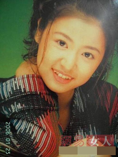 Bóc mẽ hàm răng xấu xí của người đẹp Hoa ngữ - 3
