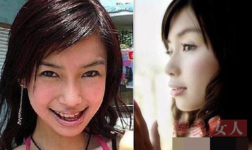 Bóc mẽ hàm răng xấu xí của người đẹp Hoa ngữ - 10