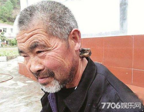 Cụ ông 102 tuổi 2 lần bị mọc sừng trên đầu - 2
