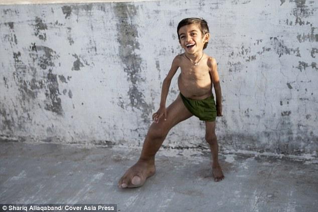 Cậu bé 4 tuổi có bàn chân khổng lồ nặng 5,4kg - 1
