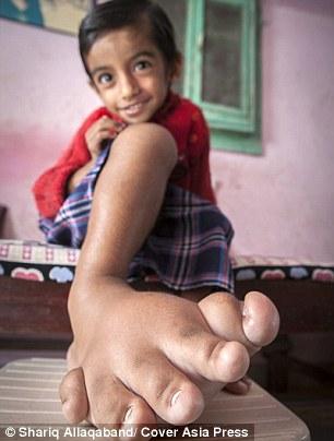 Cậu bé 4 tuổi có bàn chân khổng lồ nặng 5,4kg - 4