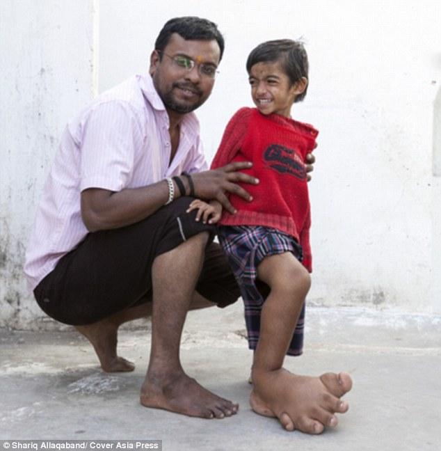 Cậu bé 4 tuổi có bàn chân khổng lồ nặng 5,4kg - 3