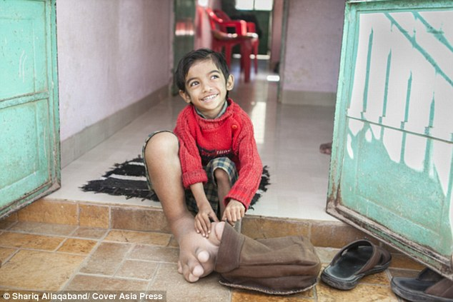Cậu bé 4 tuổi có bàn chân khổng lồ nặng 5,4kg - 5