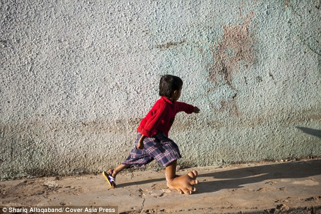 Cậu bé 4 tuổi có bàn chân khổng lồ nặng 5,4kg - 6