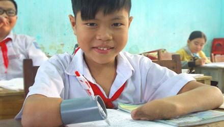 Cậu bé mất hai tay viết bài bằng… ống nhựa - 1