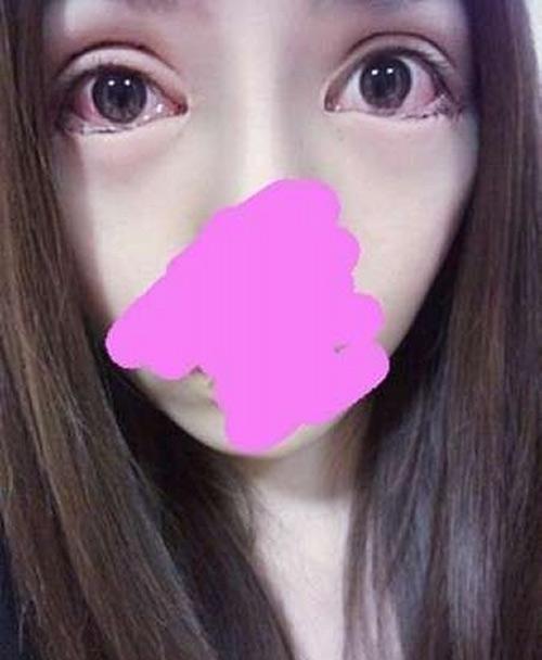 """Cô gái Trung Quốc mũi to như vòi voi hậu """"dao kéo"""" - 4"""