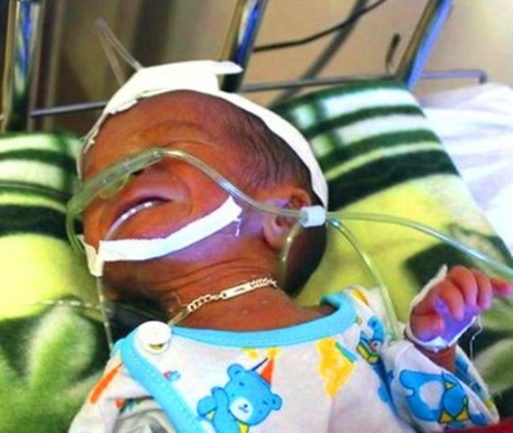 Hy hữu: Mẹ đẻ rơi con 7 tháng tuổi xuống bồn cầu - 1