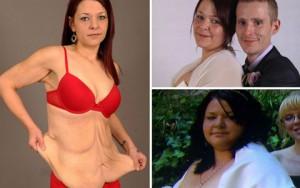 Sốc với da chảy xệ như bà già sau khi giảm 57 kg