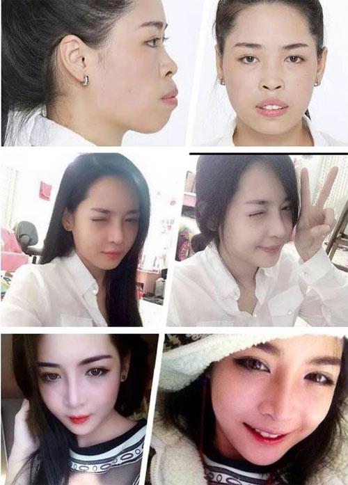 """Cô gái Nam Định xinh đẹp bất ngờ sau 3 tháng """"dao kéo"""" - 2"""