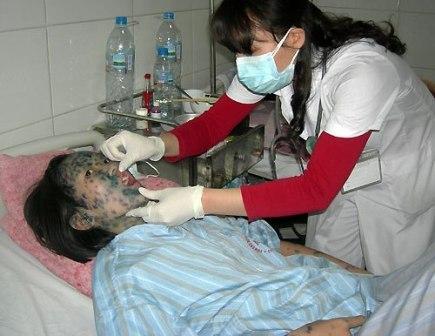 Dấu hiệu và cách chăm sóc bệnh nhân bị thủy đậu - 2