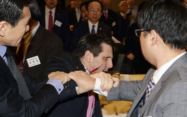 Triều Tiên lên tiếng vụ đại sứ Mỹ tại Hàn Quốc bị rạch mặt - 1