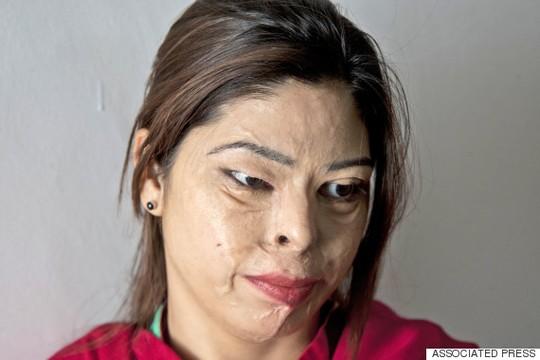 Người ăn xin bị tạt axít chỉ vì phẫu thuật chuyển giới - 1