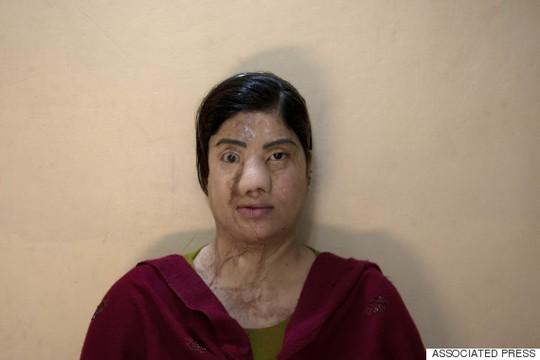 Người ăn xin bị tạt axít chỉ vì phẫu thuật chuyển giới - 2