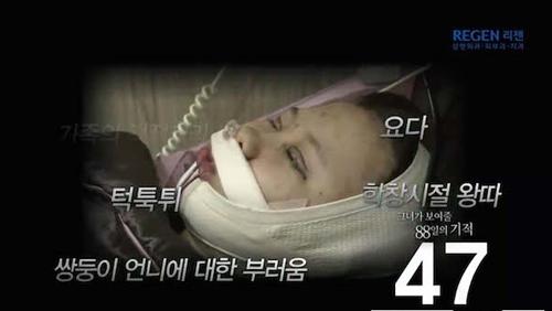 Thiếu nữ Hàn Quốc xinh đẹp hơn nhờ căn chỉnh mặt lệch - 5