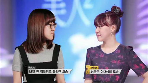 Thiếu nữ Hàn Quốc xinh đẹp hơn nhờ căn chỉnh mặt lệch - 8