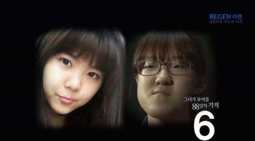 Thiếu nữ Hàn Quốc xinh đẹp hơn nhờ căn chỉnh mặt lệch - 2