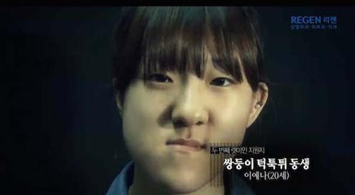 Thiếu nữ Hàn Quốc xinh đẹp hơn nhờ căn chỉnh mặt lệch - 3
