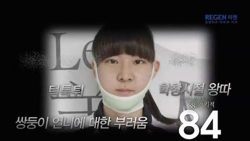 Thiếu nữ Hàn Quốc xinh đẹp hơn nhờ căn chỉnh mặt lệch - 6