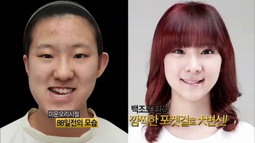 Thiếu nữ Hàn Quốc xinh đẹp hơn nhờ căn chỉnh mặt lệch - 7